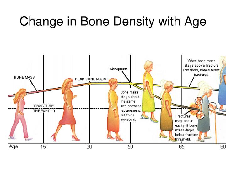 Change in Bone Density with Age