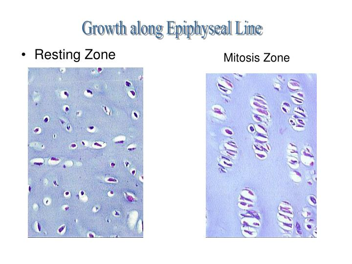 Growth along Epiphyseal Line