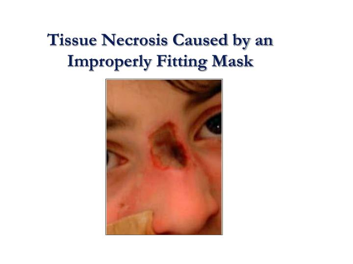 Tissue Necrosis Caused by an Improperly Fitting Mask