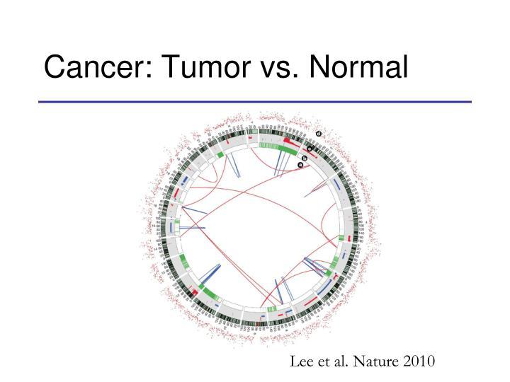 Cancer: Tumor vs. Normal