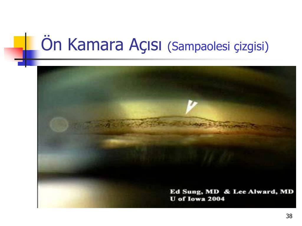 PPT - PSÖDOEKSFOLYASYON SENDROMU PowerPoint Presentation, free download -  ID:3357395