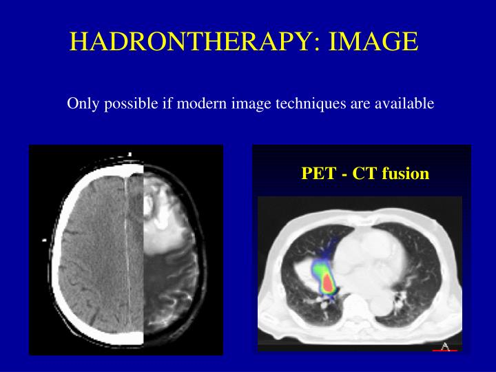 HADRONTHERAPY: IMAGE