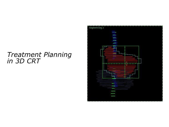 Treatment planning in 3d crt