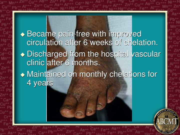 Became pain-free with improved circulation after 6 weeks of chelation.