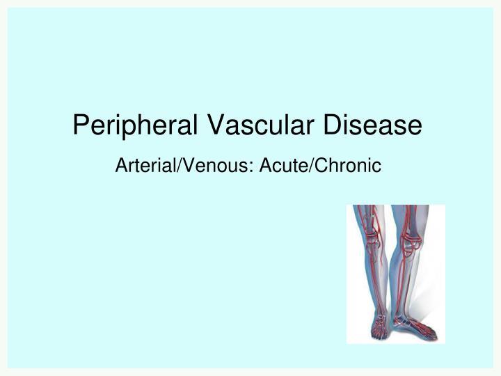 Peripheral artery disease ppt.