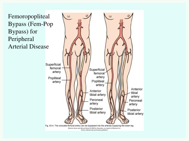 Femoropopliteal Bypass (Fem-Pop Bypass) for Peripheral Arterial Disease