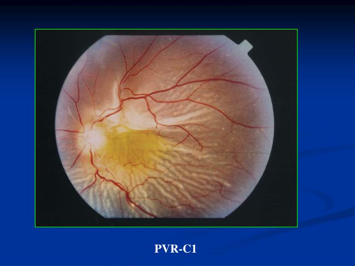 PVR-C1