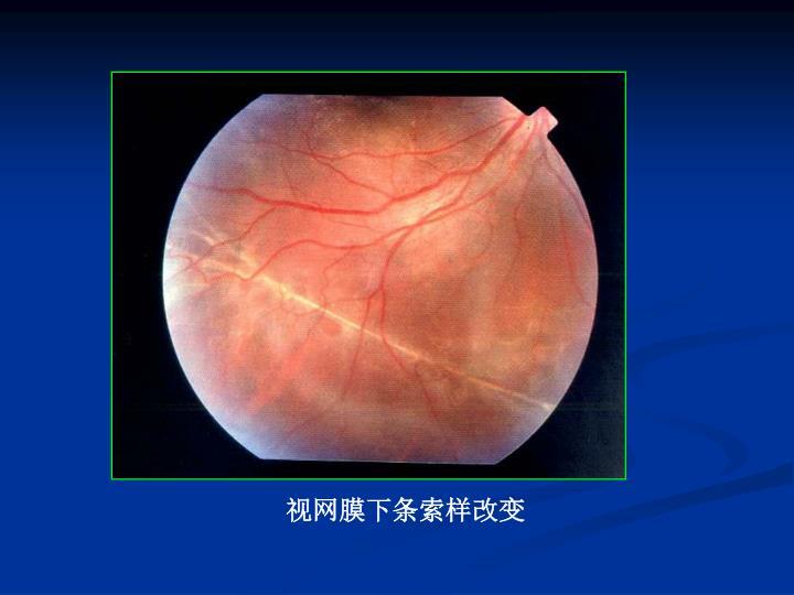 视网膜下条索样改变