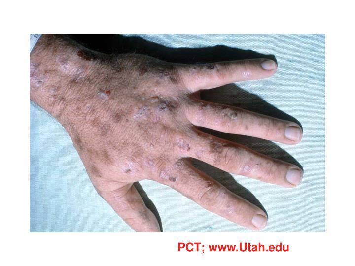 PCT; www.Utah.edu
