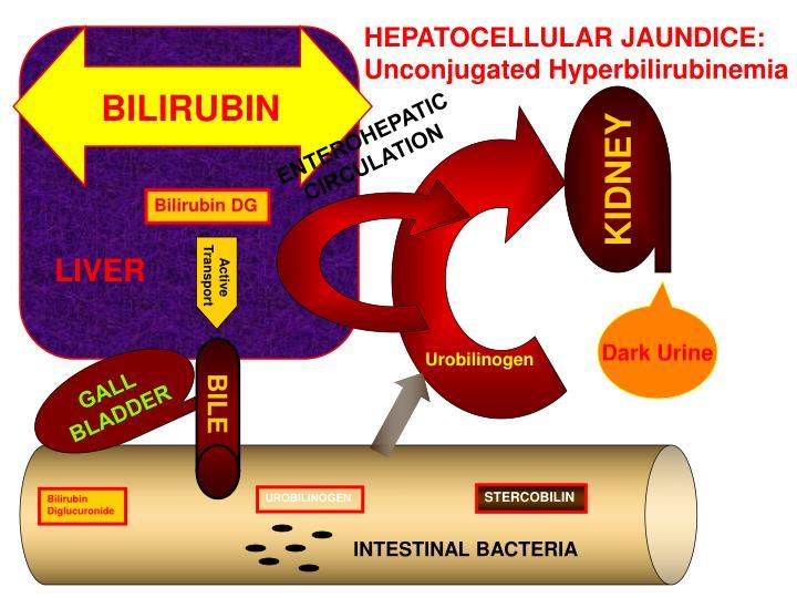 HEPATOCELLULAR JAUNDICE: