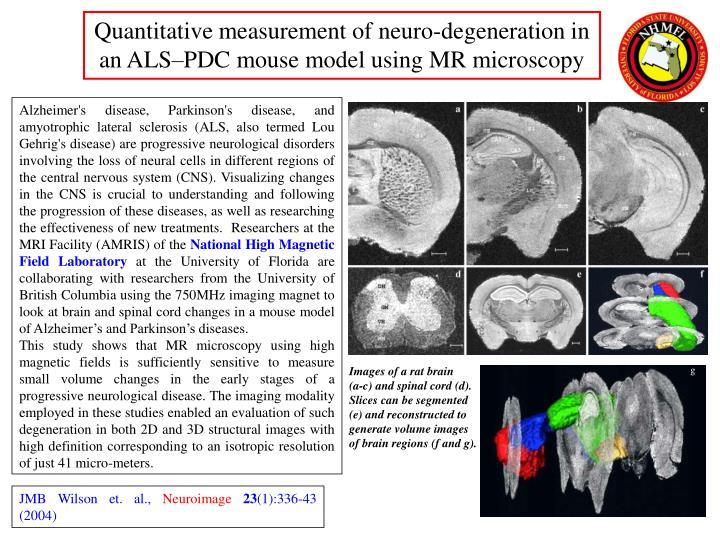 Quantitative measurement of neuro-degeneration in an ALS–PDC mouse model using MR microscopy