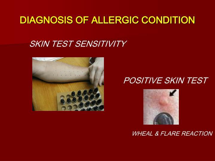 DIAGNOSIS OF ALLERGIC CONDITION