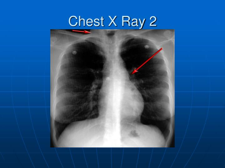 Chest X Ray 2