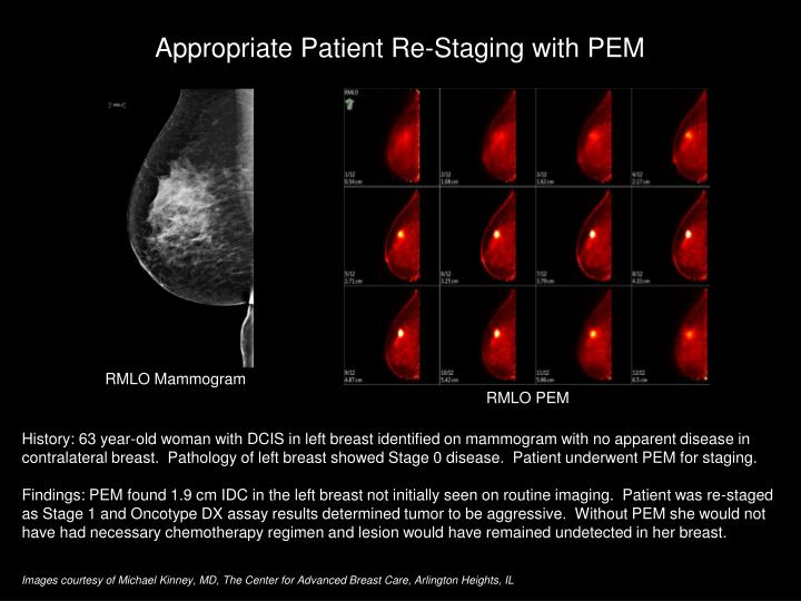 Appropriate Patient Re-Staging with PEM