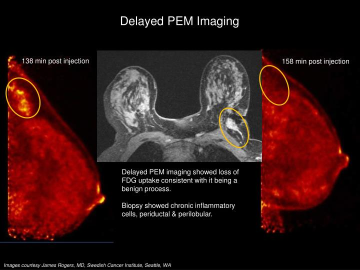 Delayed PEM Imaging