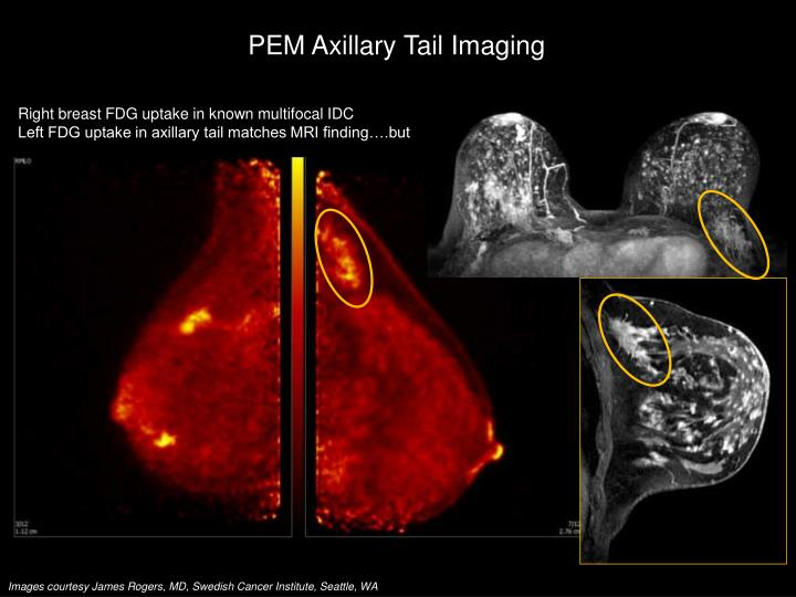 PEM Axillary Tail Imaging