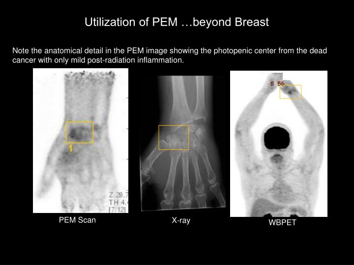 Utilization of PEM …beyond Breast