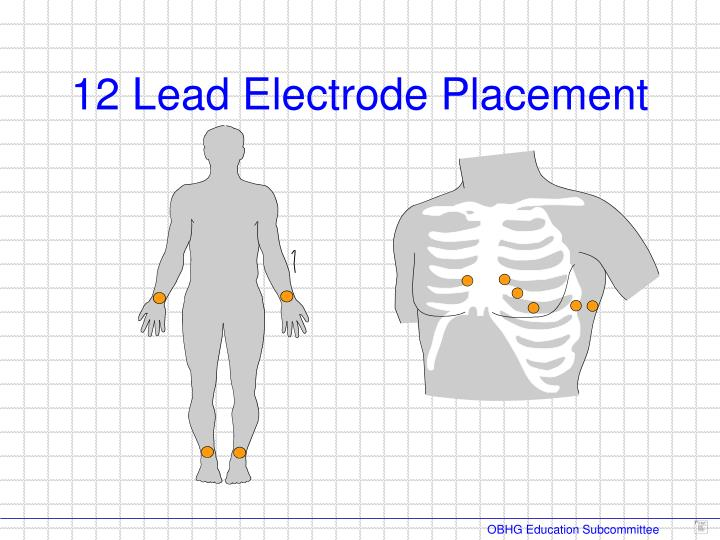 12 Lead Electrode Placement