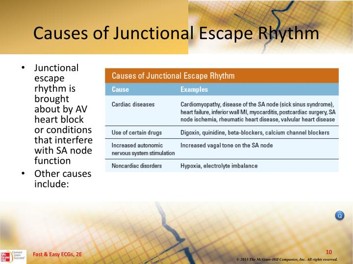 Causes of Junctional Escape Rhythm