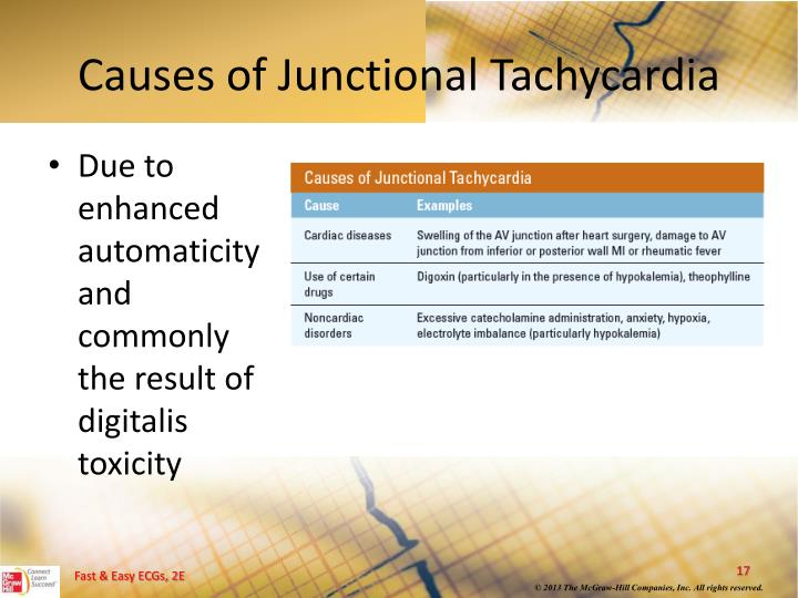 Causes of Junctional Tachycardia