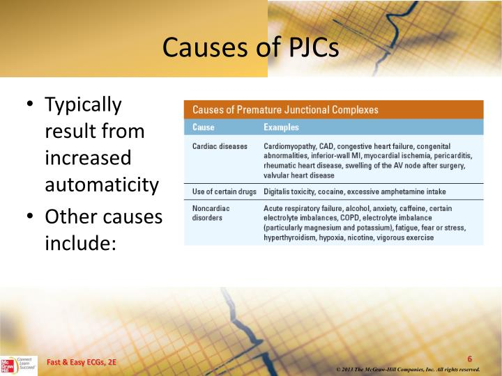Causes of PJCs