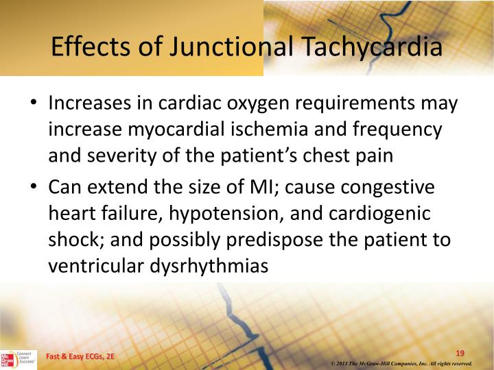 Effects of Junctional Tachycardia