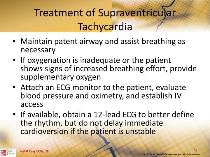 Treatment of Supraventricular Tachycardia