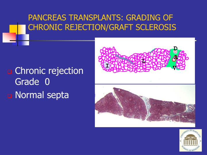 PANCREAS TRANSPLANTS: GRADING OF CHRONIC REJECTION/GRAFT SCLEROSIS