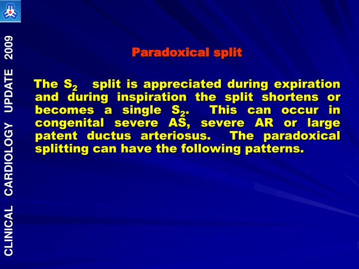 Ppt Second Heart Sound In Congenital Heart Disease Powerpoint