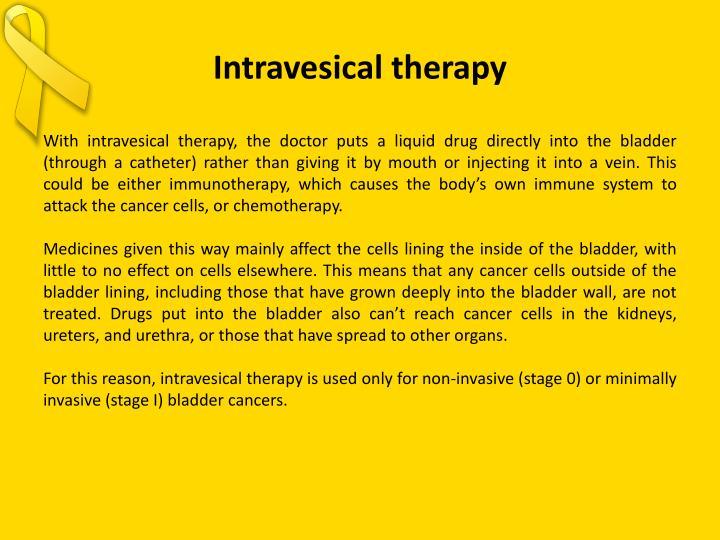 Intravesical