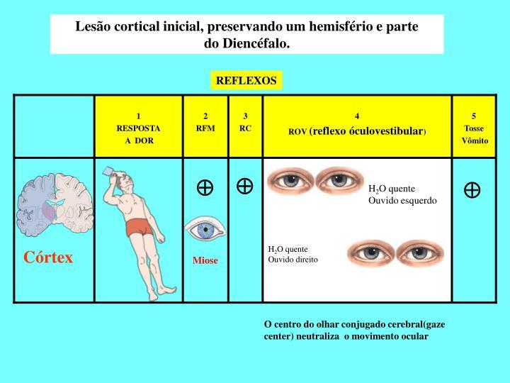 Lesão cortical inicial, preservando um hemisfério e parte