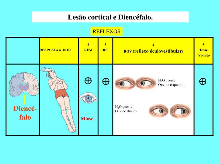 Lesão cortical e Diencéfalo.