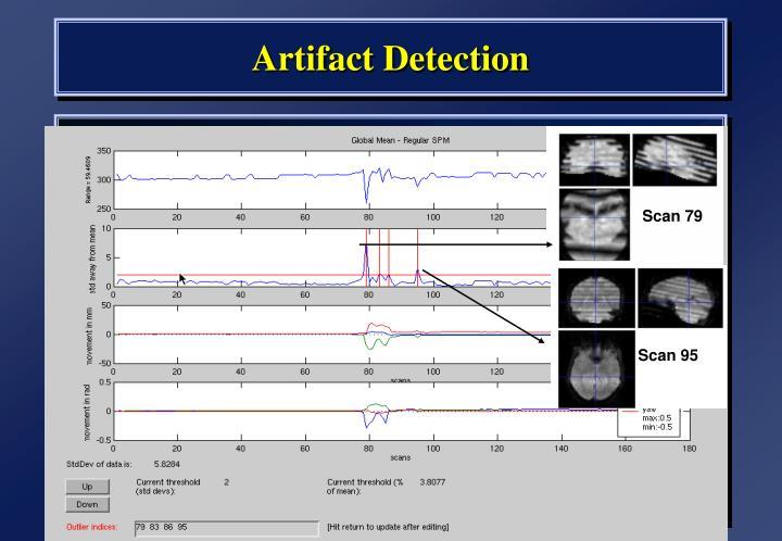 Artifact Detection