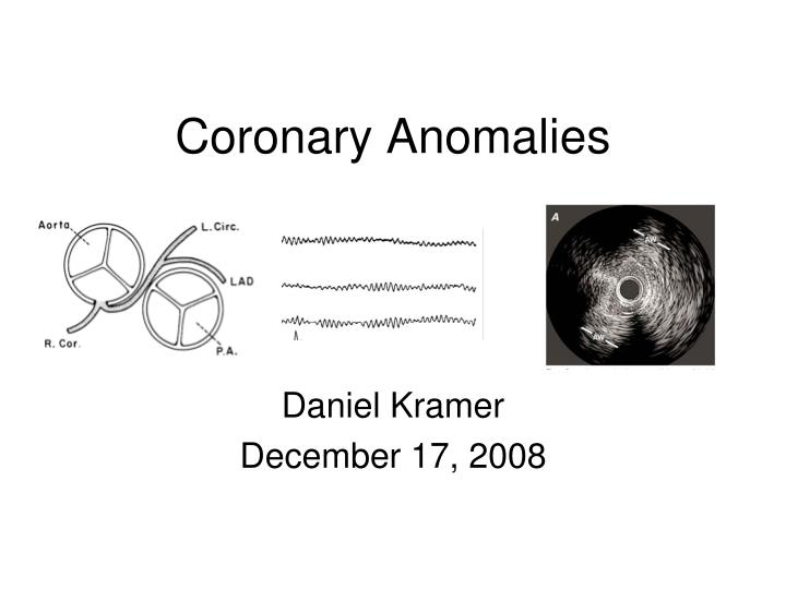 coronary anomalies n.