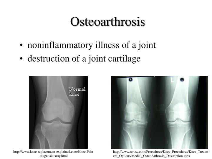 Osteoarthrosis