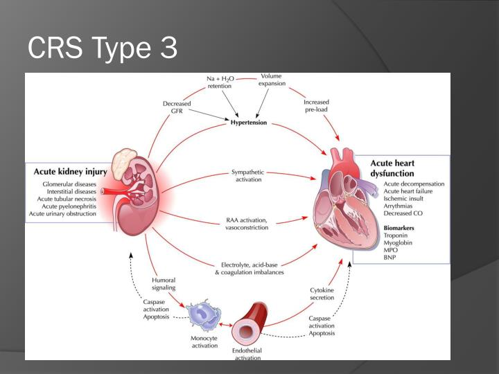 CRS Type 3
