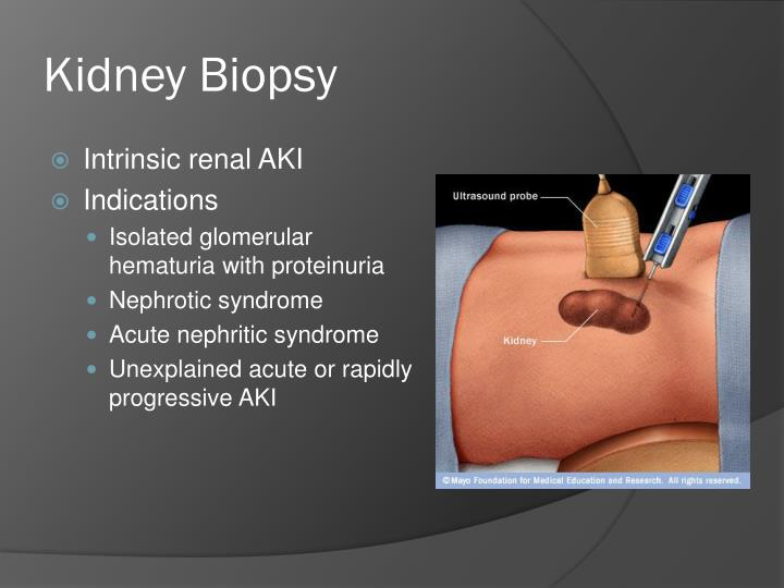 Kidney Biopsy