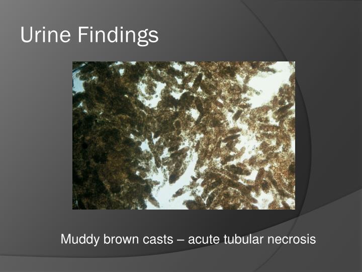 Urine Findings