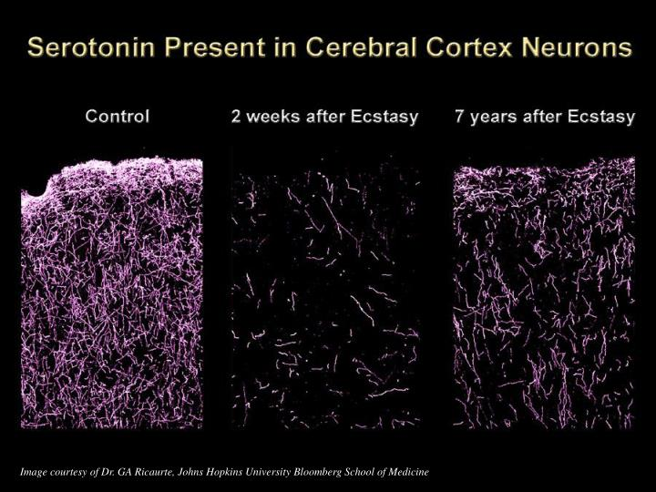 Image courtesy of Dr. GA Ricaurte, Johns Hopkins University Bloomberg School of Medicine