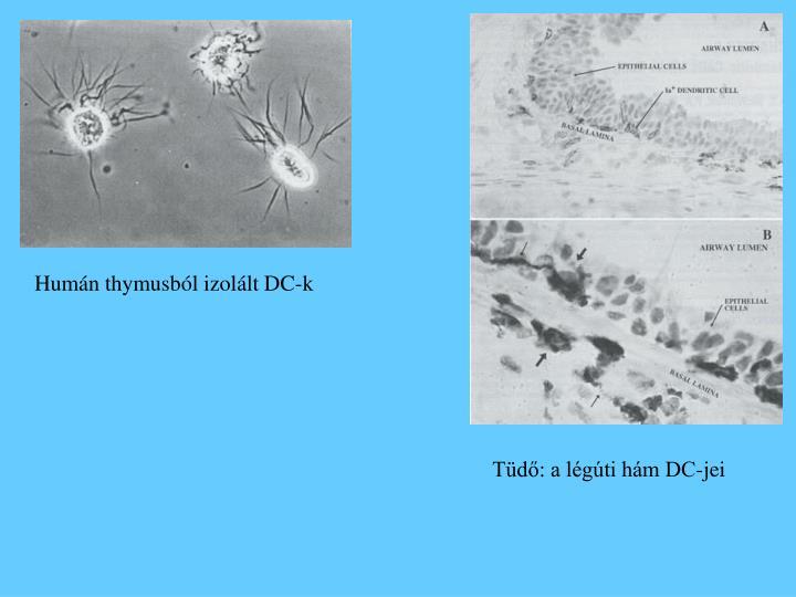 Humán thymusból izolált DC-k