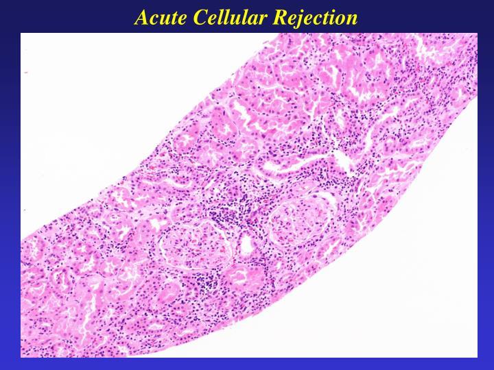 Acute Cellular Rejection