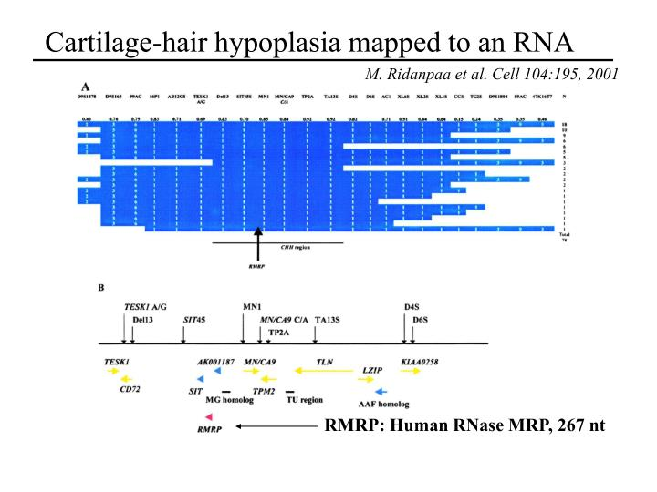 Cartilage-hair hypoplasia mapped to an RNA