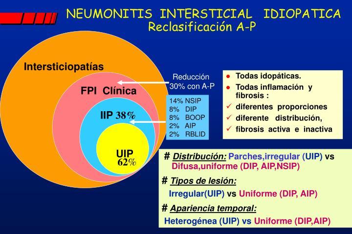 NEUMONITIS  INTERSTICIAL   IDIOPATICA