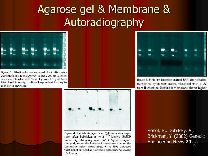 Agarose gel & Membrane & Autoradiography