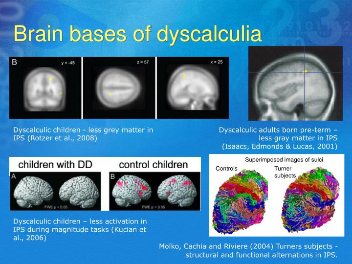 Final, Dyscalculia in adults