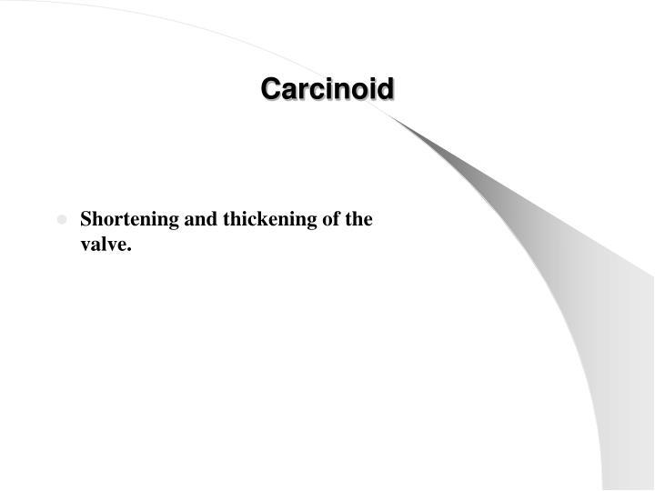 Carcinoid