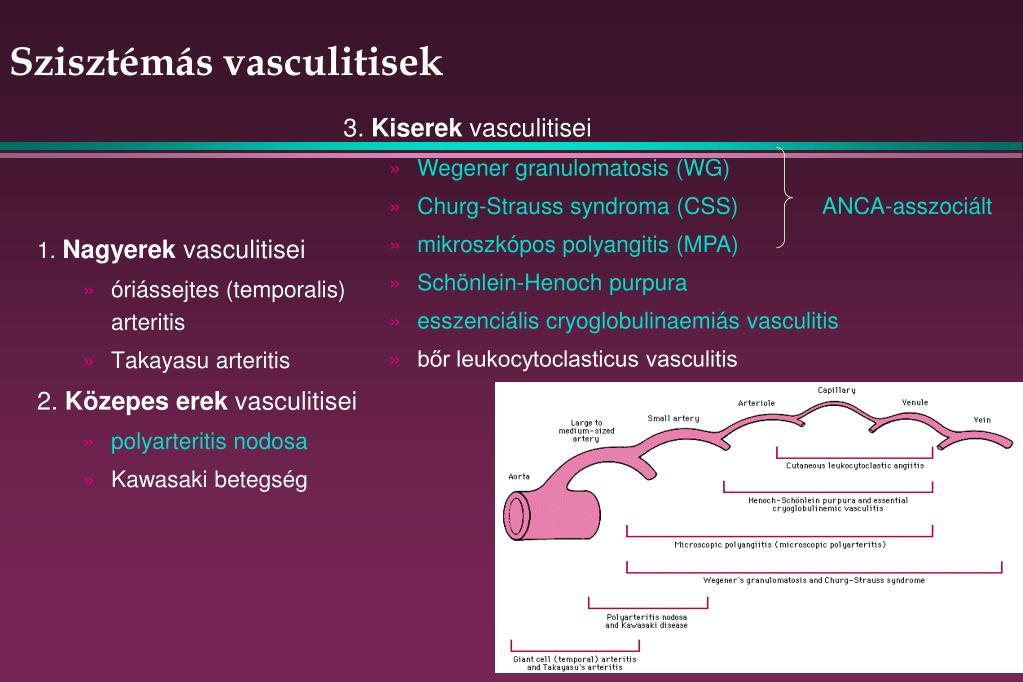 disszeminált kötőszöveti betegség krém a hátcsontritkulás kezelésére