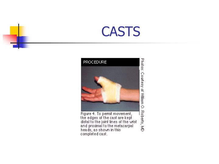 CASTS