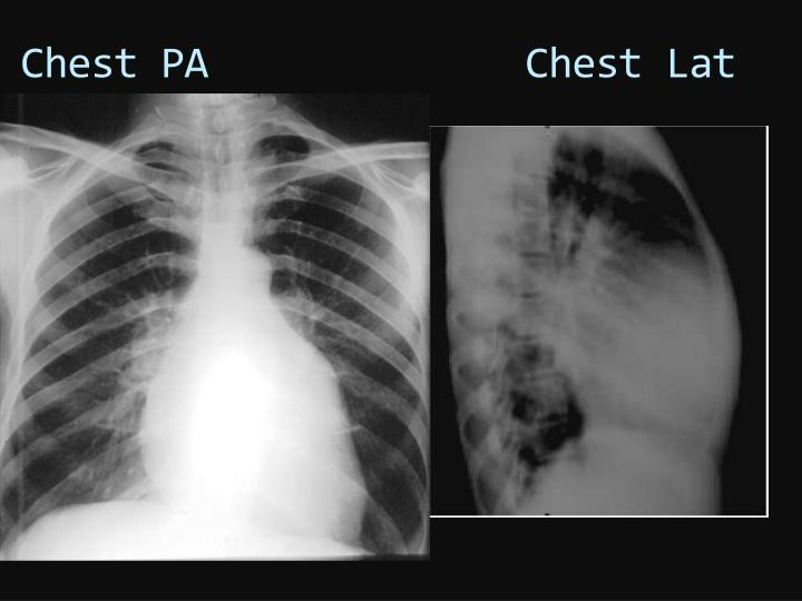 chest pa chest lat n.