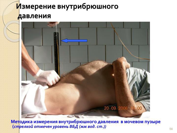 Измерение внутрибрюшного